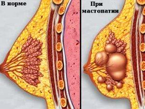 Диффузная фиброзная мастопатия - вид молочной железы в норме и при заболевании