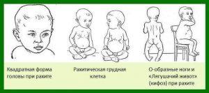 Рахит у грудничков: фото