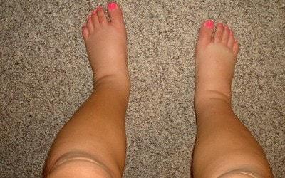 Что делать, если отекают ноги при беременности: советы, народные средства