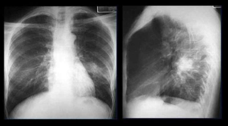 Пнивмония у взрослых симптомы, признаки и лечение