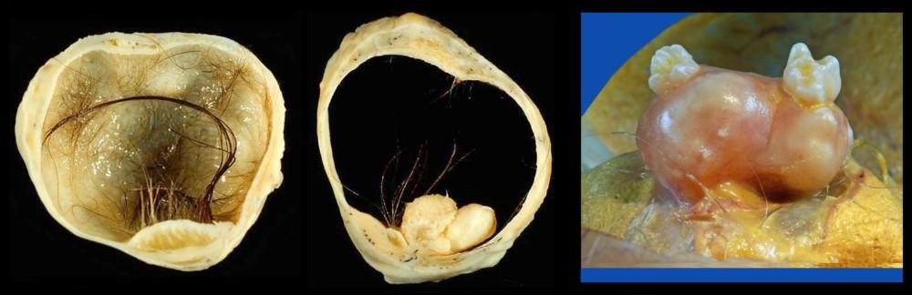Дермоидная киста яичника - симптомы, причины, лечение, операция