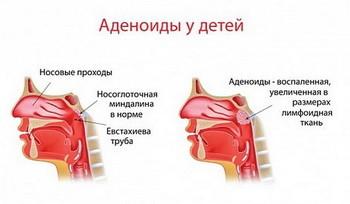 Аденоиды у детей: симптомы, лечение, удаление, степени, фото