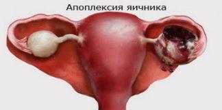 Апоплексия яичника: лечение, причины, симптомы, признаки, фото