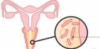 Бактериальный вагиноз: лечение, причины, симптомы, признаки, фото