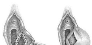 Бартолинит: лечение у женщин, причины, симптомы, признаки, фото