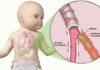Бронхит у детей: симптомы и лечение острого и обструктивного бронхита у детей