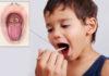 Дифтерия у детей: лечение, симптомы, фото; прививка от дифтерии детям