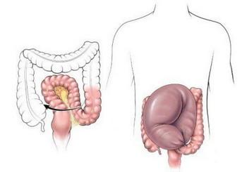 Долихосигма кишечника у взрослых и детей: лечение, причины, симптомы, признаки, фото