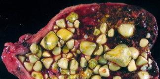 Камни в желчном пузыре: симптомы, лечение без операции. Что делать и как растворить камни в желчном пузыре