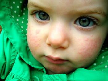 Крапивница у детей: лечение, причины, симптомы, признаки, фото