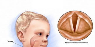Ларингит у детей: лечение, симптомы, фото; острый ларингит и температура при нем