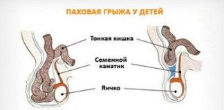 Паховая грыжа у детей: лечение, причины, симптомы, признаки, фото