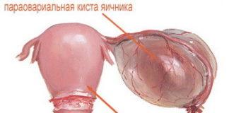 Параовариальная киста яичника: лечение, причины, симптомы, признаки, фото