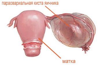 Киста яичника у ребенка причины симптомы лечение профилактика