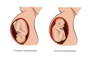 Головное предлежание плода на 18 неделе беременности thumbnail