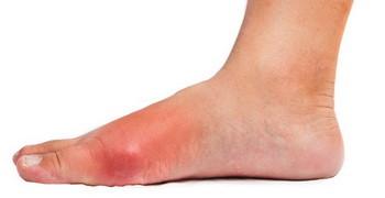Рожистое воспаление ноги: симптомы и лечение
