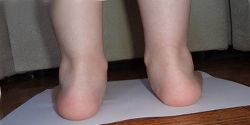 Вальгусная деформация стопы у детей: лечение, массаж, фото