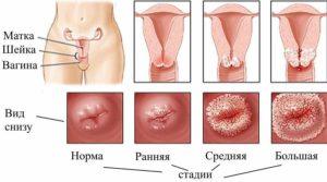 Что такое крауроз вульвы и как от него избавиться