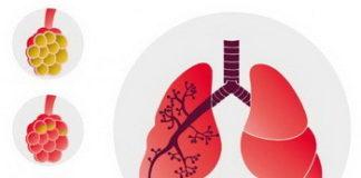 Вирусная пневмония у детей: симптомы, лечение, причины, признаки