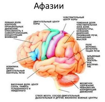 Афазия: виды, коррекция, причины, симптомы