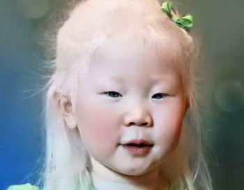 Альбинизм: лечение, причины, симптомы, признаки