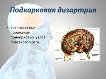 Дизартрия: коррекция, степени, причины, симптомы