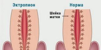 Эктропион шейки матки: лечение, причины, признаки, фото