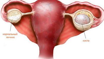 Эндометриоидная киста яичника симптомы и лечение женщины