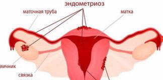 Эндометриоз: лечение, причины, симптомы, признаки