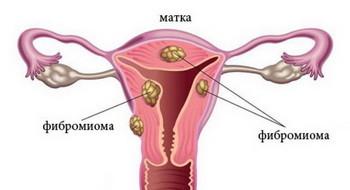 Фиброма матки: лечение, причины, симптомы, признаки, фото