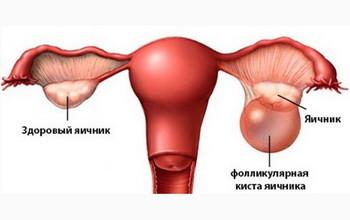 Что такое фолликулярная киста яичника Признаки и лечение