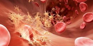 Гемофилия: лечение, причины, симптомы, признаки