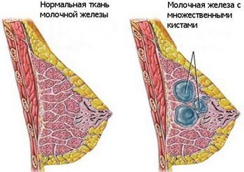 Киста молочной железы: лечение, удаление кисты, причины, симптомы, признаки, фото