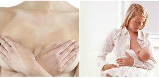 Мастит у кормящей матери: лечение, причины, симптомы, признаки, фото