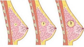 Мастопатия груди у женщин