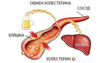 Норма холестерина у женщин по возрасту таблицей, снижение холестерина, профилактика и общие рекомендации
