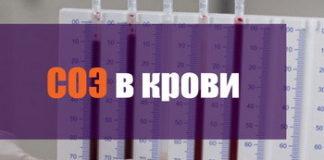 Норма соэ в крови у женщин после 50 лет, после 40 лет: таблица по возрасту