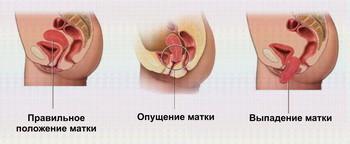 Опущение матки: лечение, упражнения для лечения, причины, симптомы, признаки, фото