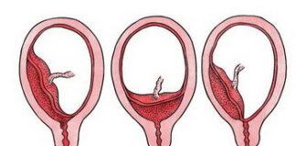 Предлежание плаценты: лечение, причины, симптомы, признаки