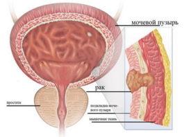 Рак мочевого пузыря у женщин: симптомы, лечение, стадии и признаки