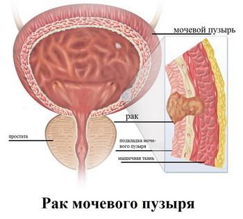 Симптомы рака мочевого пузыря первые и последующие признаки