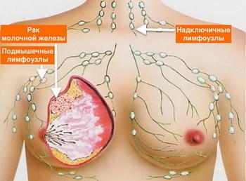 Рак молочной железы: лечение, причины, симптомы, признаки, фото