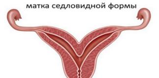 Седловидная матка: лечение, причины, симптомы, признаки, фото