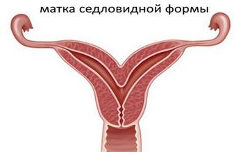 Варикоз на ногах у женщин: симптомы, причины, лечение, профилактика