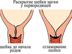 Матка после родов - опущение, сокращение. Сколько сокращается матка после родов и как это ускорить