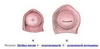 Шейка матки после родов: сокращение, эрозия, опущение матки, размеры, узи после родов, сгустки в матке