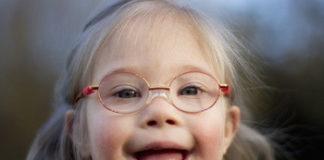 Синдром Дауна: лечение, причины, симптомы, признаки, дети с синдромом Дауна