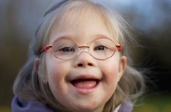 Синдром Дауна - причины, лечение и осложнения синдрома Дауна