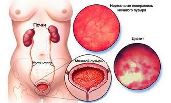 Воспаление мочевого пузыря — что это за болезнь, и как лечить?