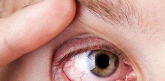Глазные капли от покраснения и раздражения глаз: какие лучше выбрать, отзывы